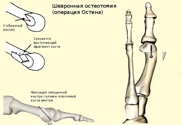 Плоскостопие винты в подтаранный сустав при подвывихе тазобедренного сустава